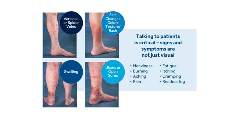 Understanding Vein Disease